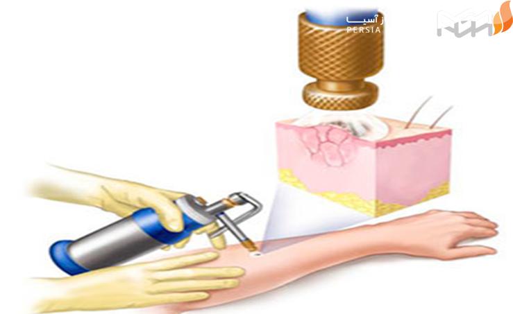 - در چه مواردی از مخزن نیتروژن مایع استفاده می شود؟